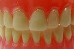 hammasprotetiikka